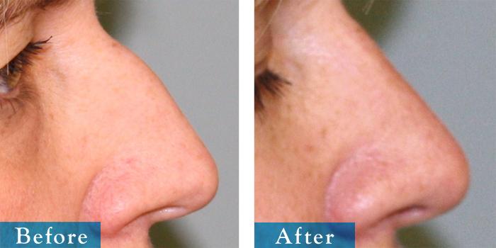edmonton-cosmetic-surgery-rhino-24.jpg