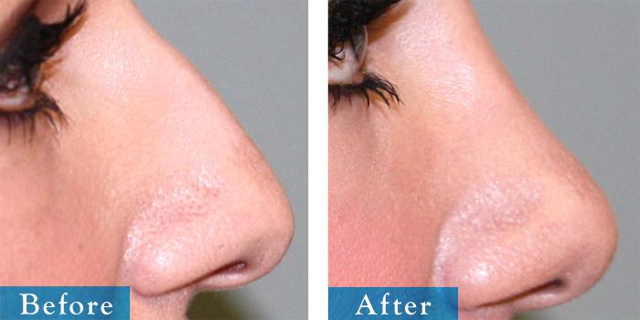 edmonton-cosmetic-surgery-rhino-25.jpg