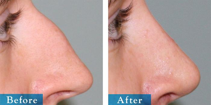 edmonton-cosmetic-surgery-rhino-3.jpg