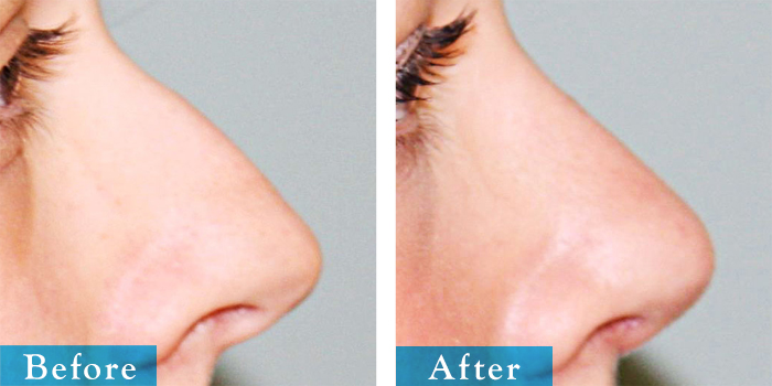 edmonton-cosmetic-surgery-rhino-6.jpg