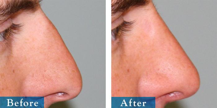 edmonton-cosmetic-surgery-rhino-5.jpg