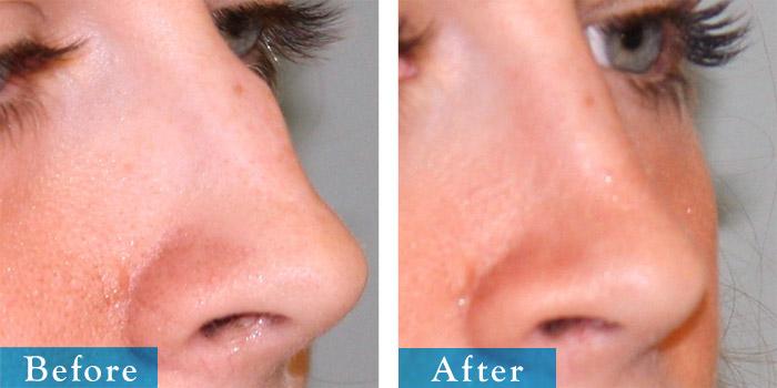 edmonton-cosmetic-surgery-rhino-10.jpg