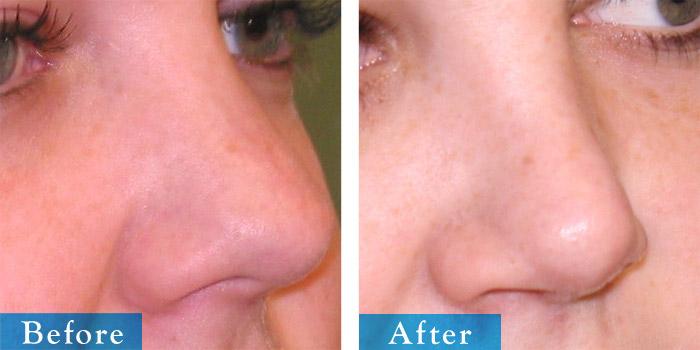 edmonton-cosmetic-surgery-rhino-12.jpg