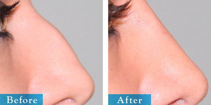 edmonton-cosmetic-surgery-rhino-14.jpg