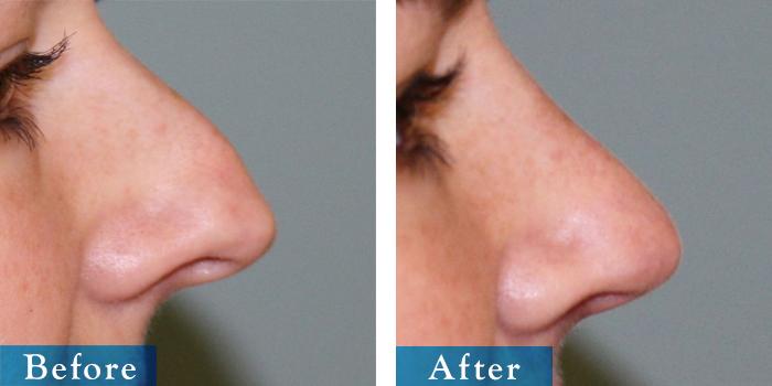 edmonton-cosmetic-surgery-rhino-29.jpg