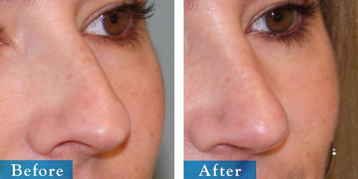 edmonton-cosmetic-surgery-rhino-30.jpg