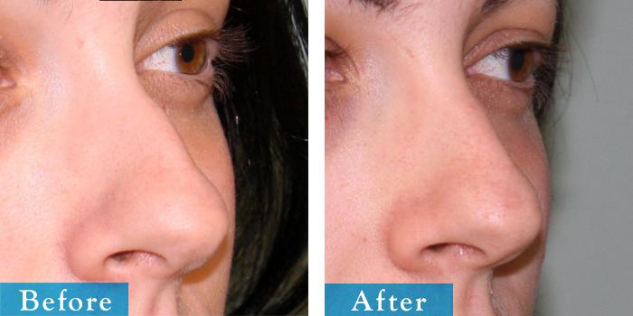 edmonton-cosmetic-surgery-rhino-31.jpg