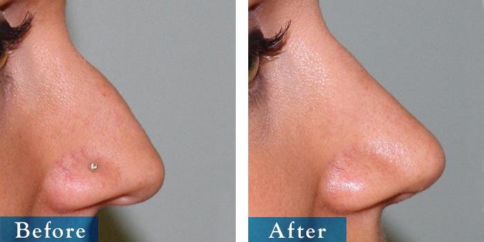 edmonton-cosmetic-surgery-rhino-28.jpg
