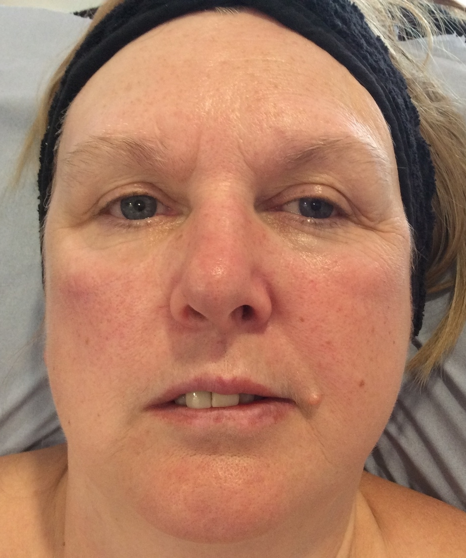Before the non surgical facelift.