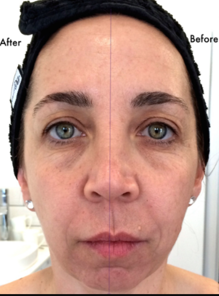 Actual result achieved at the harpal clinic with Intraceuticals after one 60 minute treatment.