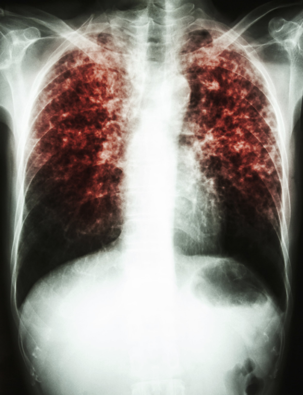 Tuberculosis is a disease affecting the lungs; growth of the pathogen in the lung causes granuloma formation and scarring.