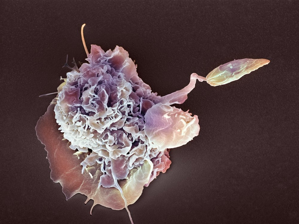 White blood cell eating a Leishmania parasite