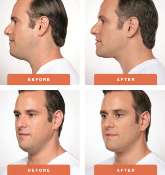 kybella-treatment-male-patient-before-and-afters.jpg
