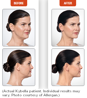 Kybella-before-and-after-2.png