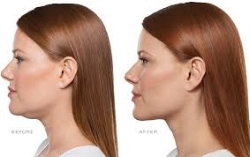 Kybella® - The only FDA-approved injectable treatment that permanently destroys fat cells in the treatment area under the chin to improve your profile.