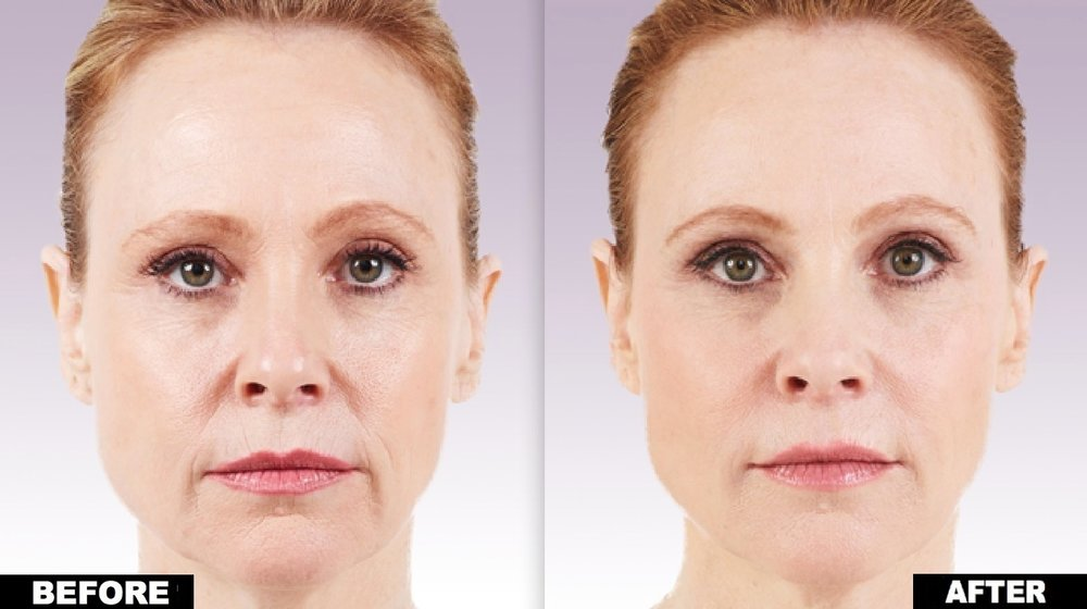 A total of 3.0 mL of JUVÉDERM®XC was injected into the parentheses, marionette, corner, and vertical lip lines.