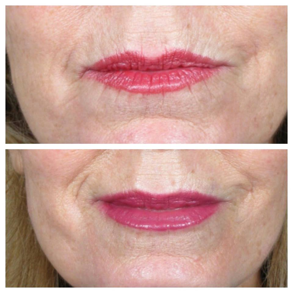 A total of 1.1 ml of volbella was injected into the lips, the vermillion border and vertical lip lines