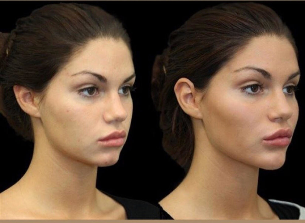 A total of 7 mL of Voluma was injected. 2.75 ml in each cheek, and 1.5 ml in the chin.