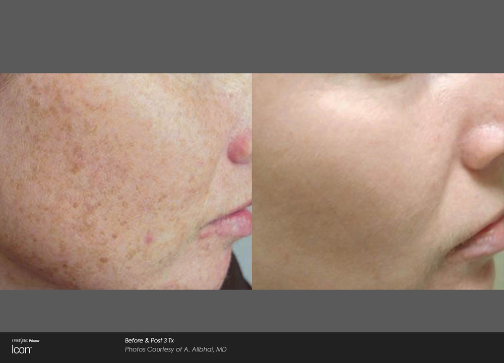 Skin-Revitalization-Before-&-After-Photo-1.jpg