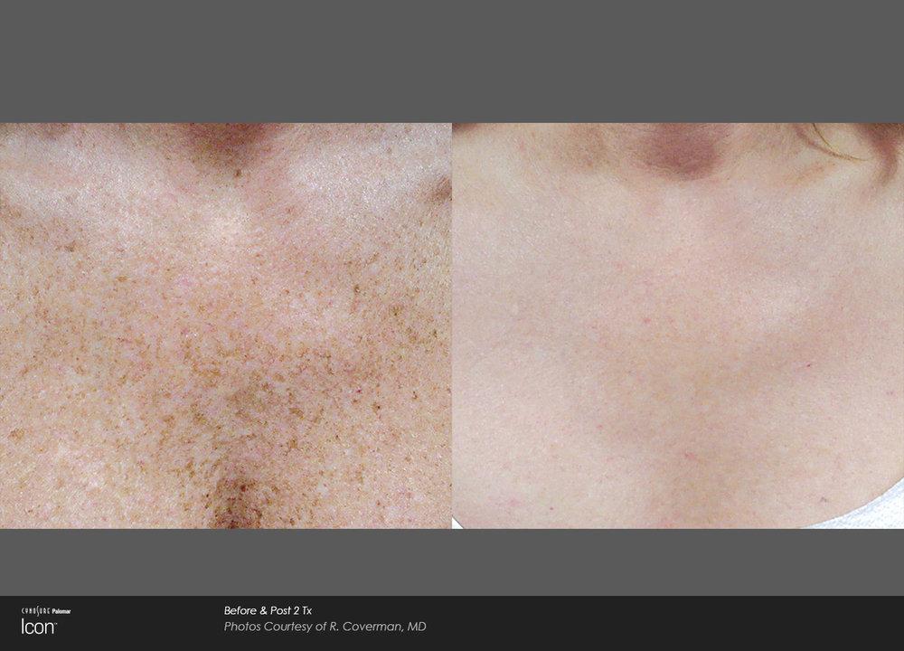 Skin-Revitalization-Before-&-After-Photo-7.jpg