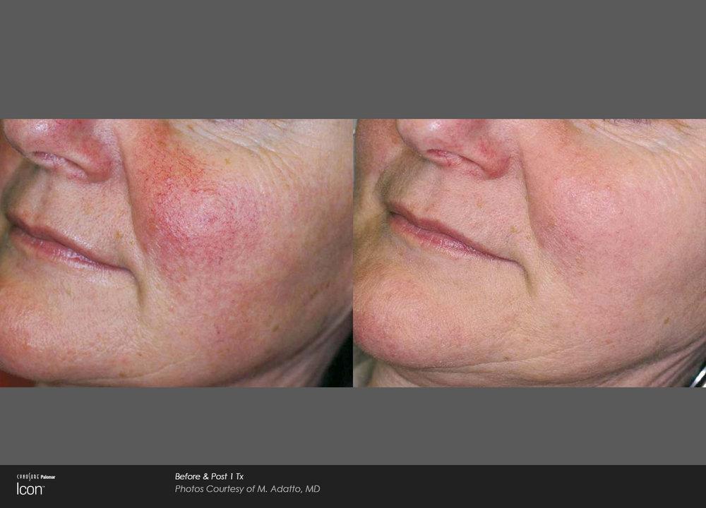 Skin-Revitalization-Before-&-After-Photo-5.jpg