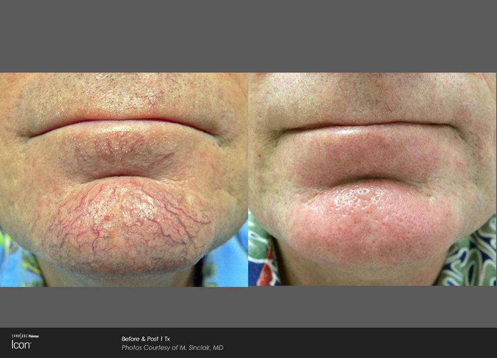 Skin-Revitalization-Before-&-After-Photo-3.jpg