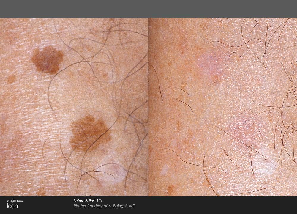 Skin-Revitalization-Before-&-After-Photo-4.jpg
