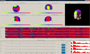 BCI visualization with OpenVibe