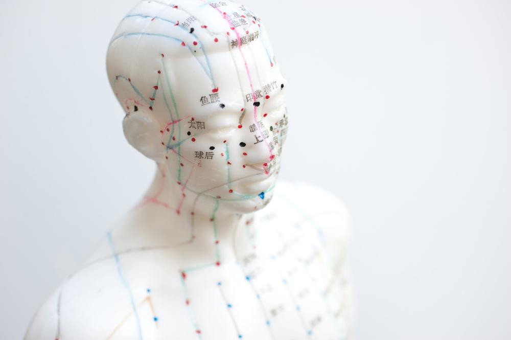 Acupuncture man1.jpg