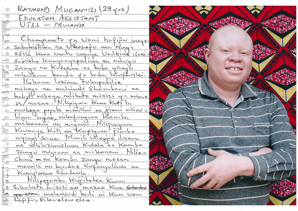 Raymond Muganyizi (29 years old)    Education Assistant - UTSS Mwanza.    The challenge of low vision which is caused by lack of pigmentation to people with albinism was the reason for being a target of discrimination by my relatives. After my father died I was abused by my uncle. It was mandatory for me to tend to our cassava and corn farm and often it happened that I accidentally would cut the roots of the plants. I would be beaten with sticks all over my body and in the evening I would be stripped naked and they would tie my arms and feet using a rope. Then I would be tied to an anchor and beaten without mercy. My whole body would be covered with blood and I would be left that way for nearly two hours. Then they would untie me and my uncle would not allow me to eat dinner that night.    They did not want to listen when I tried to prove that I did not cut the roots or crops intentionally but it was because of my low vision.