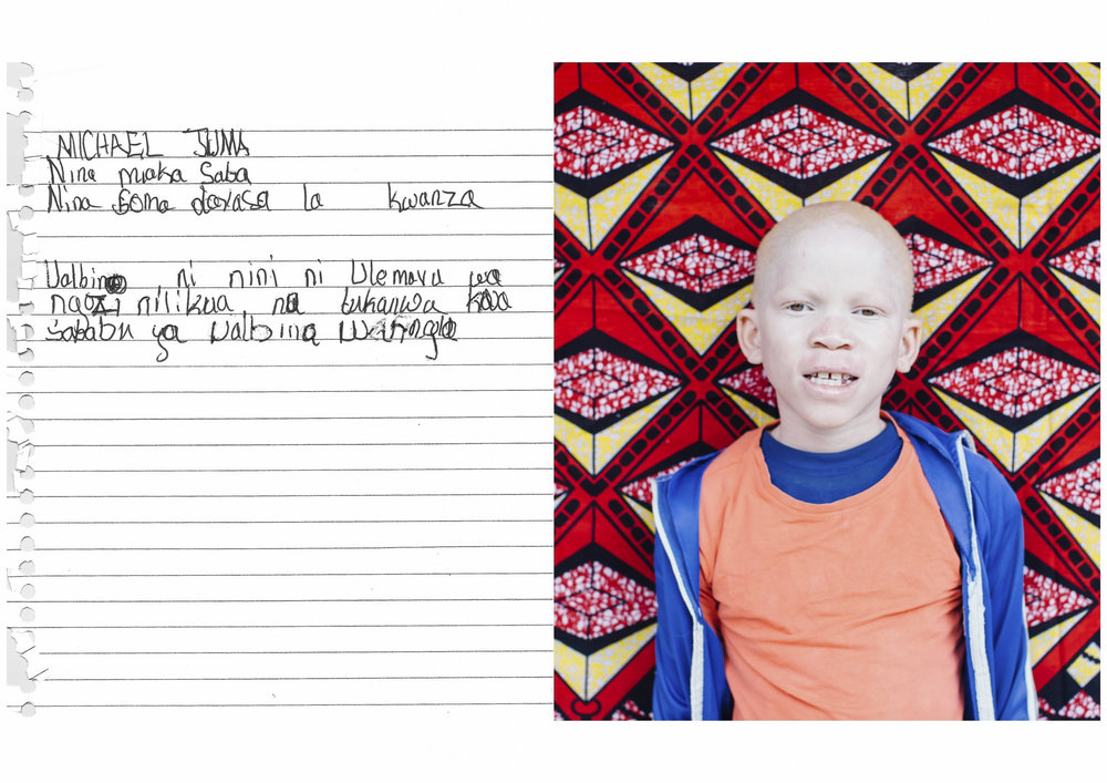 MICHAEL JUMA    I am 7 years old.    I am in Standard 1    Albinism means a skin disorder.    I was being insulted because of my condition.