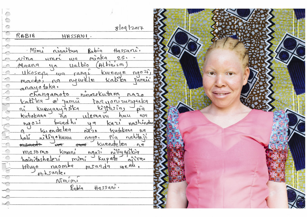 My name is Rabia Hassani.    I am 25 years old.     Meaning of albinism?    Lacking pigment in the skin, eyes, and hair in the society that she comes from.    Challenges that I face in the community around me is being discriminated based on gender, and because of this skin disorder I am incapable of doing certain jobs. Also, I need to carry on with my studies because the level that I have reached is not enough for me to get employed. Therefore, I ask for your help.