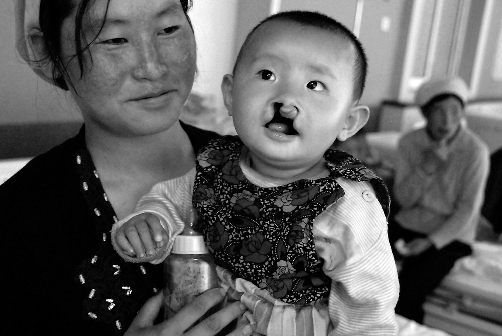 Cleft Lip/Palate Surgery Camp, Xian, China