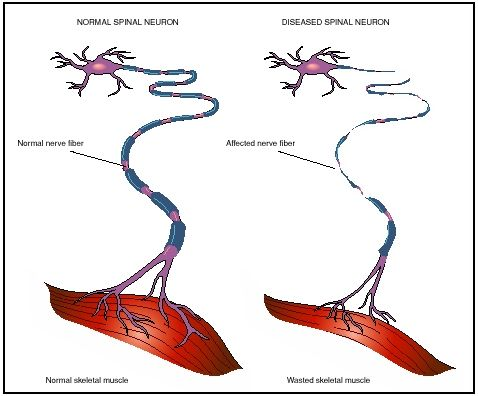 Alsicebucketchallenge engineered per4mance for Motor neuron disease symptoms early