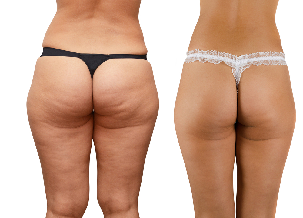 laser-treatment-cellulite-removal