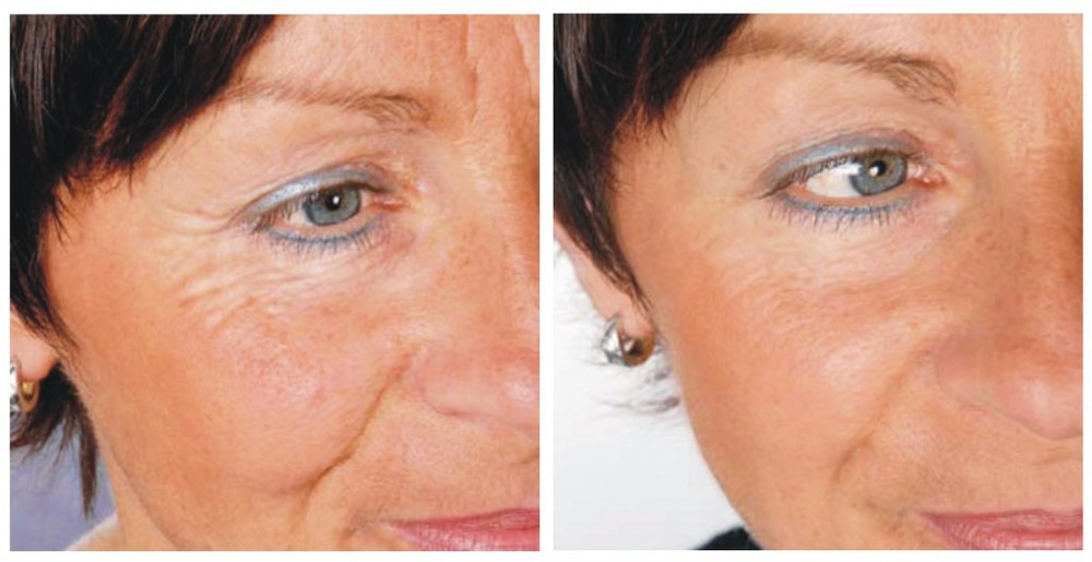 laser-treatment-skin-tightening