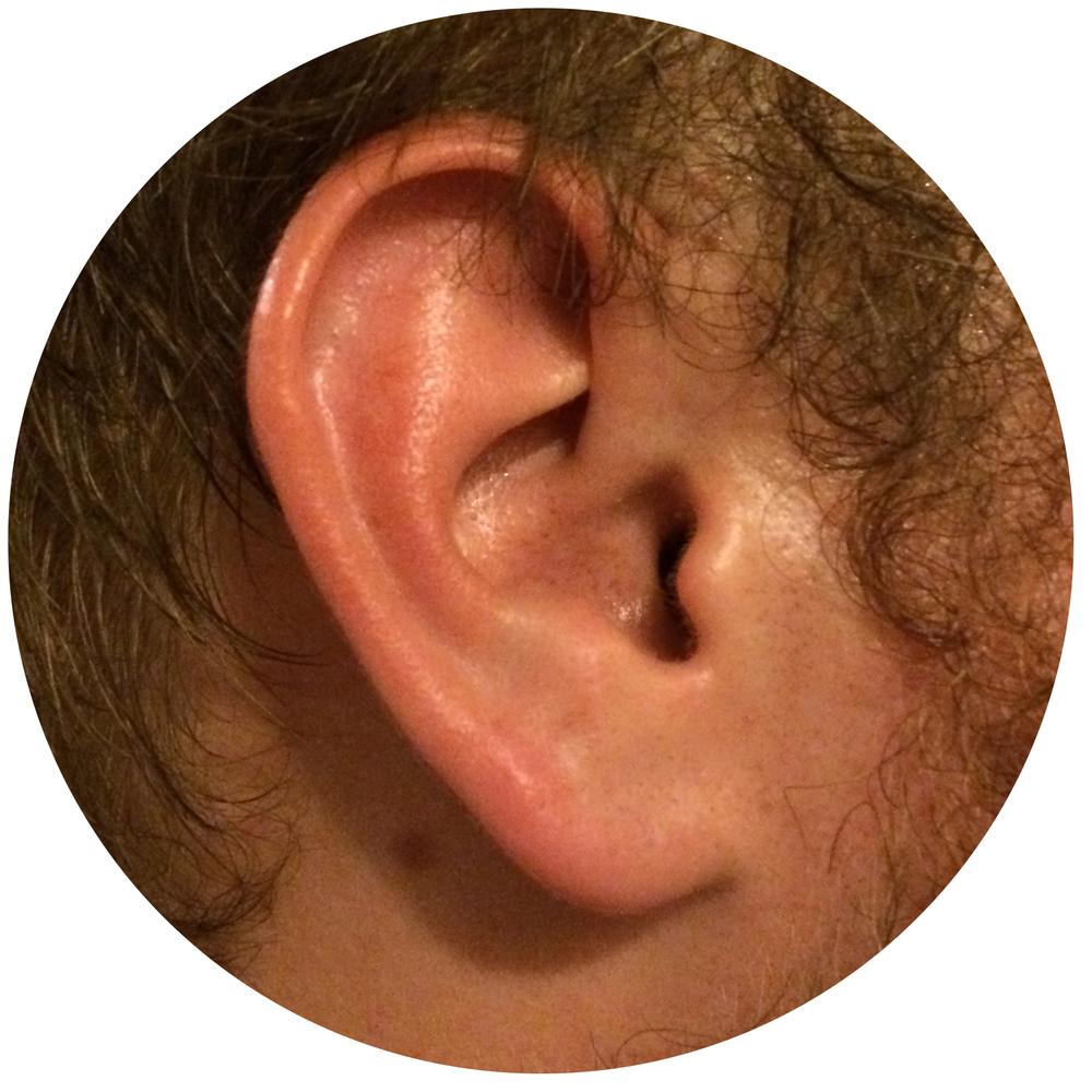 Caleb Ear.jpg