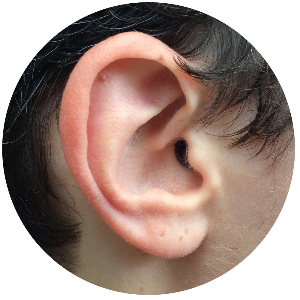Gertz Ear.jpg