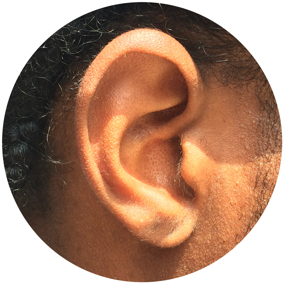 Lawrence Ear.jpg