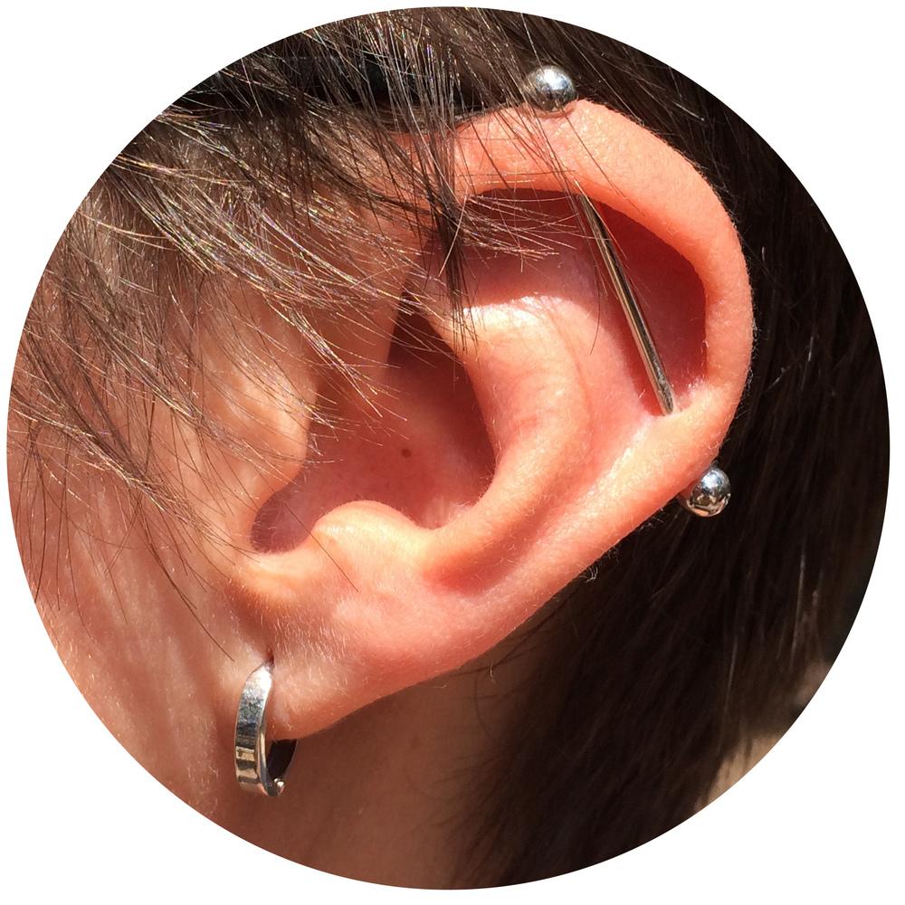 Kari Ear.jpg