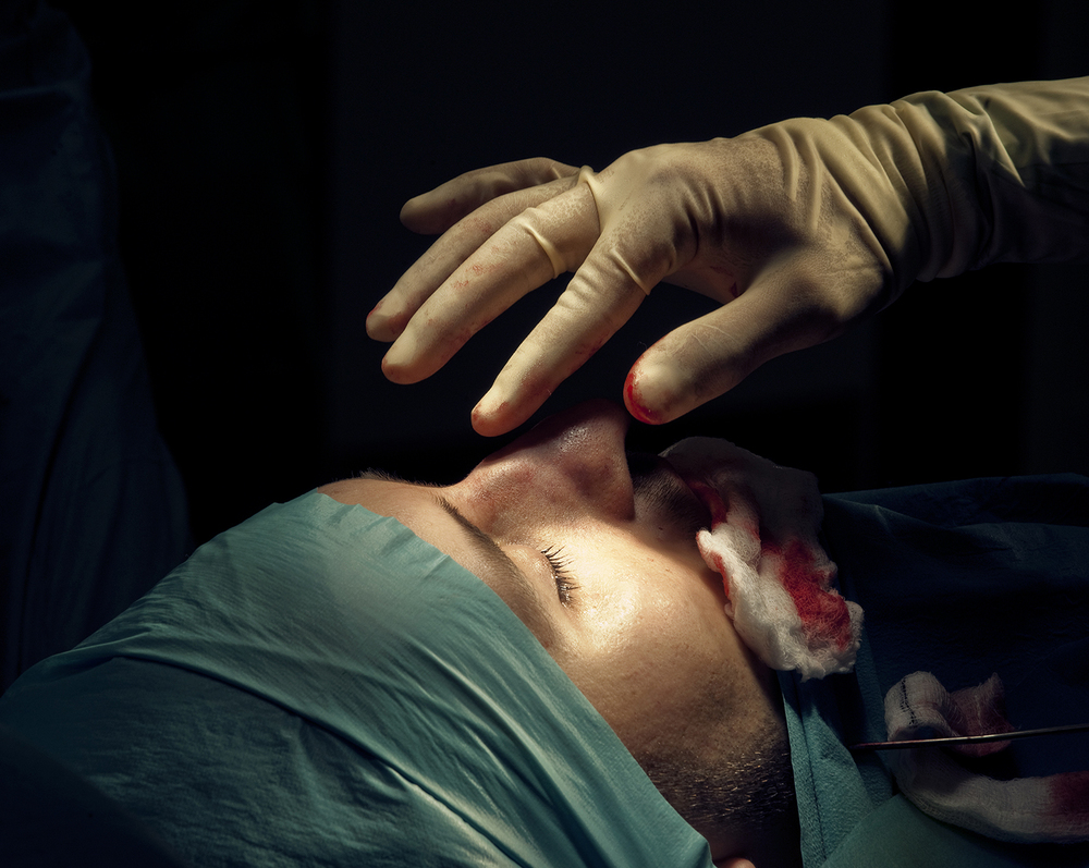 A 25-year-old British man undergoes rhinoplasty surgery to reduce the size of his nose in London, 2011. ©Zed Nelson