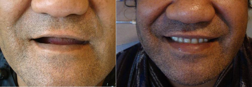 First Full Dentures - top and bottom