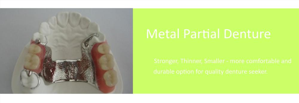 Metal partial-denture