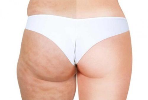 Foto:http://amelioretasante.com/auto-massages-pour-eliminer-la-cellulite/
