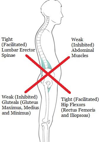 Lowercross syndrome.jpg