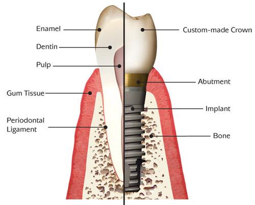 Implant Anatomy