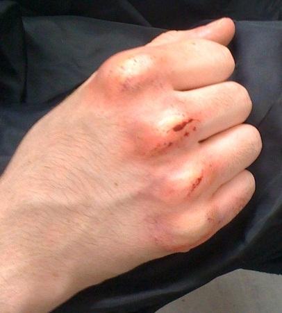 SPFX - Swollen Knuckles