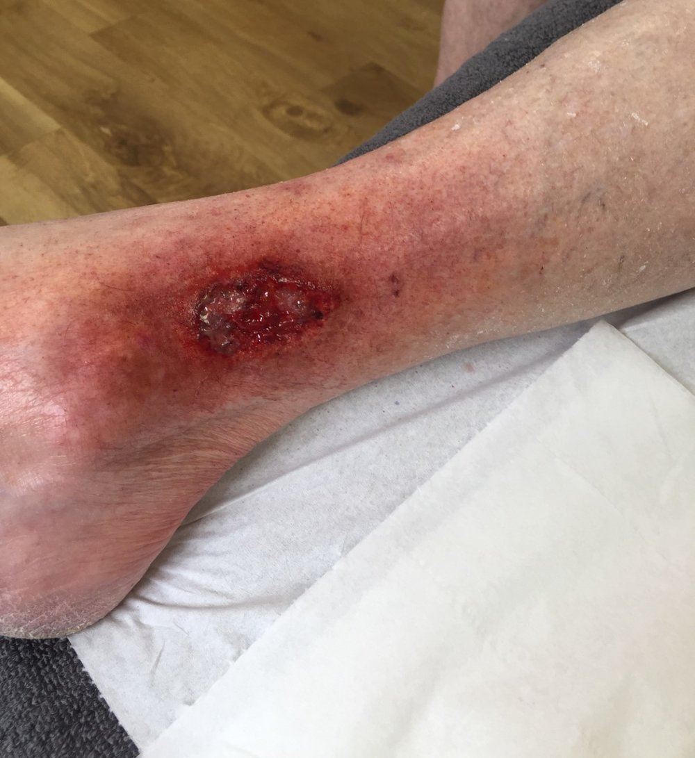 Spfx makeup - Venous leg ulcer for global medical wound care company