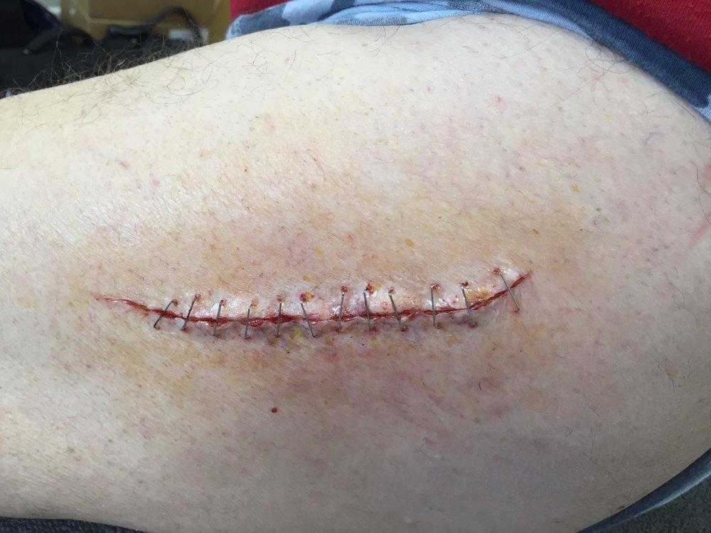 spfx hip surgery makeup