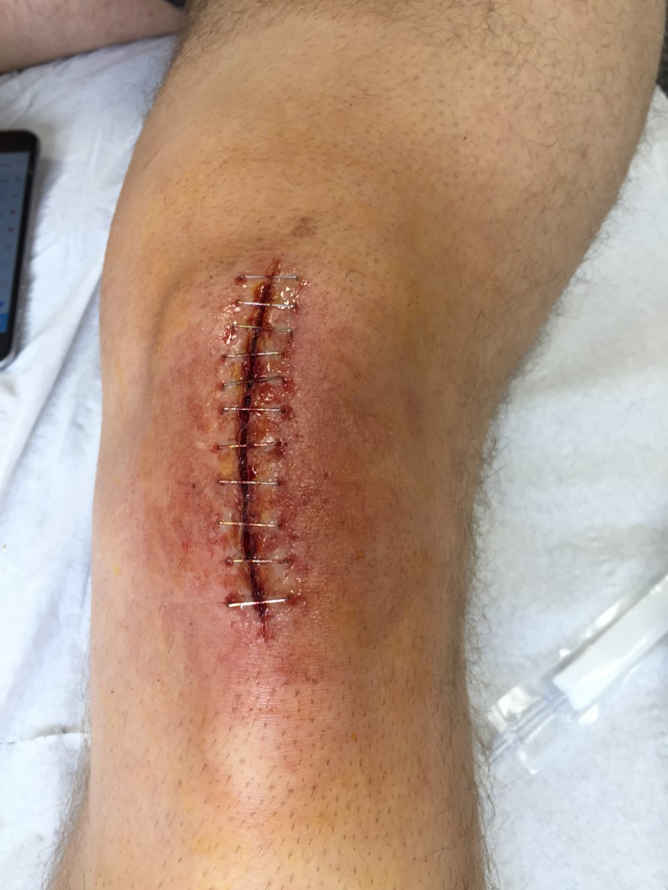 spfx knee surgery makeup